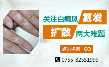 深圳白癜风治疗中心
